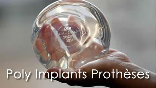 Poly Implants Prothèses (сокращенно PIP)
