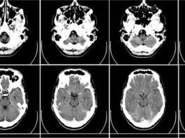 Альцгеймер: человек стареет с головы