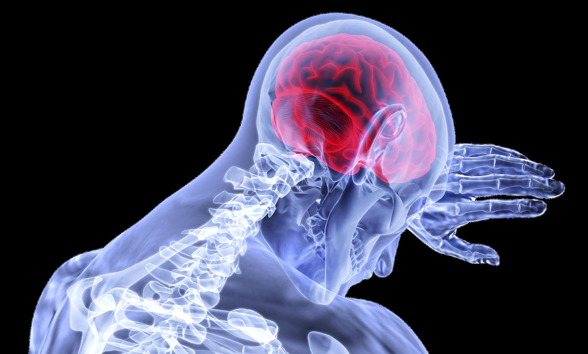 Инсульт головного мозга: факты, симптомы и советы